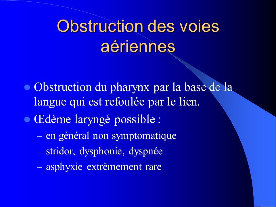 Obstruction des voies aériennes Obstruction du pharynx par la base de la langue qui est refoulée par le lien.