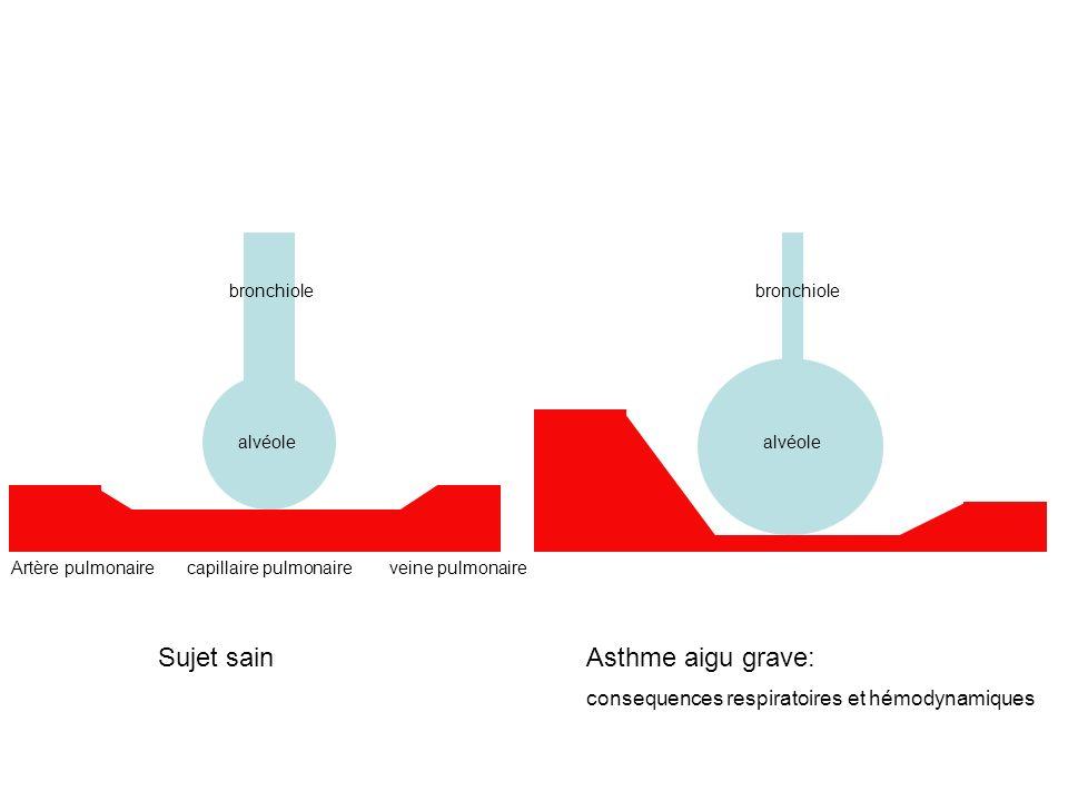 Artère pulmonaire capillaire pulmonaire veine pulmonaire alvéole bronchiole alvéole bronchiole Sujet sainAsthme aigu grave: consequences respiratoires