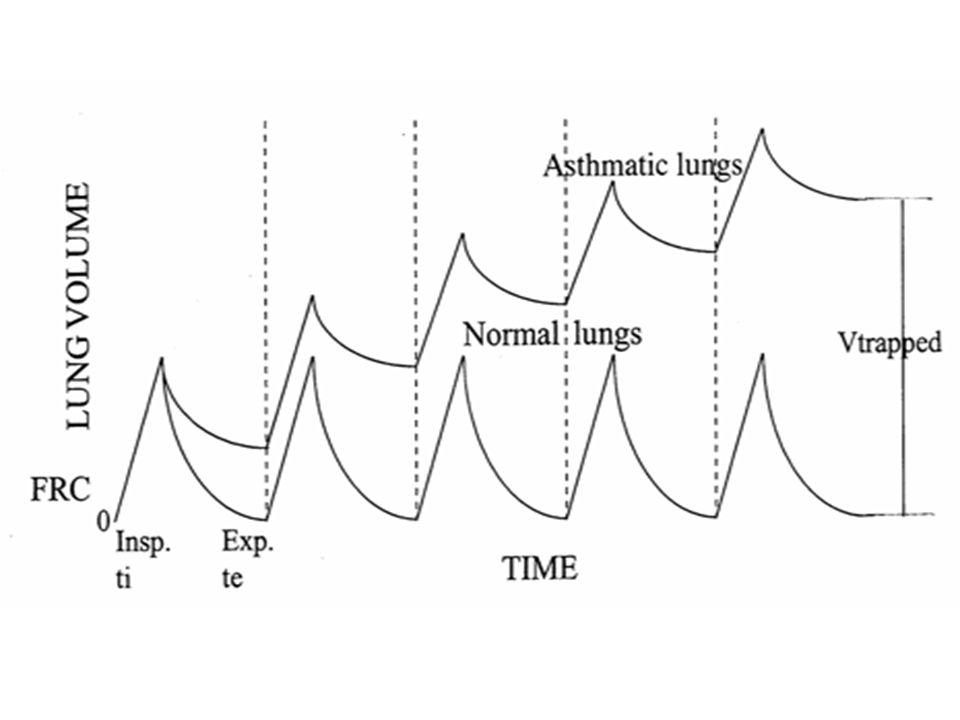 Artère pulmonaire capillaire pulmonaire veine pulmonaire alvéole bronchiole alvéole bronchiole Sujet sainAsthme aigu grave: consequences respiratoires et hémodynamiques