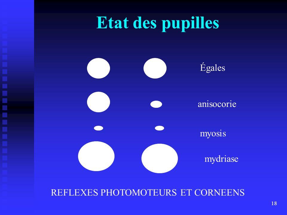 18 Etat des pupilles Égales anisocorie myosis mydriase REFLEXES PHOTOMOTEURS ET CORNEENS