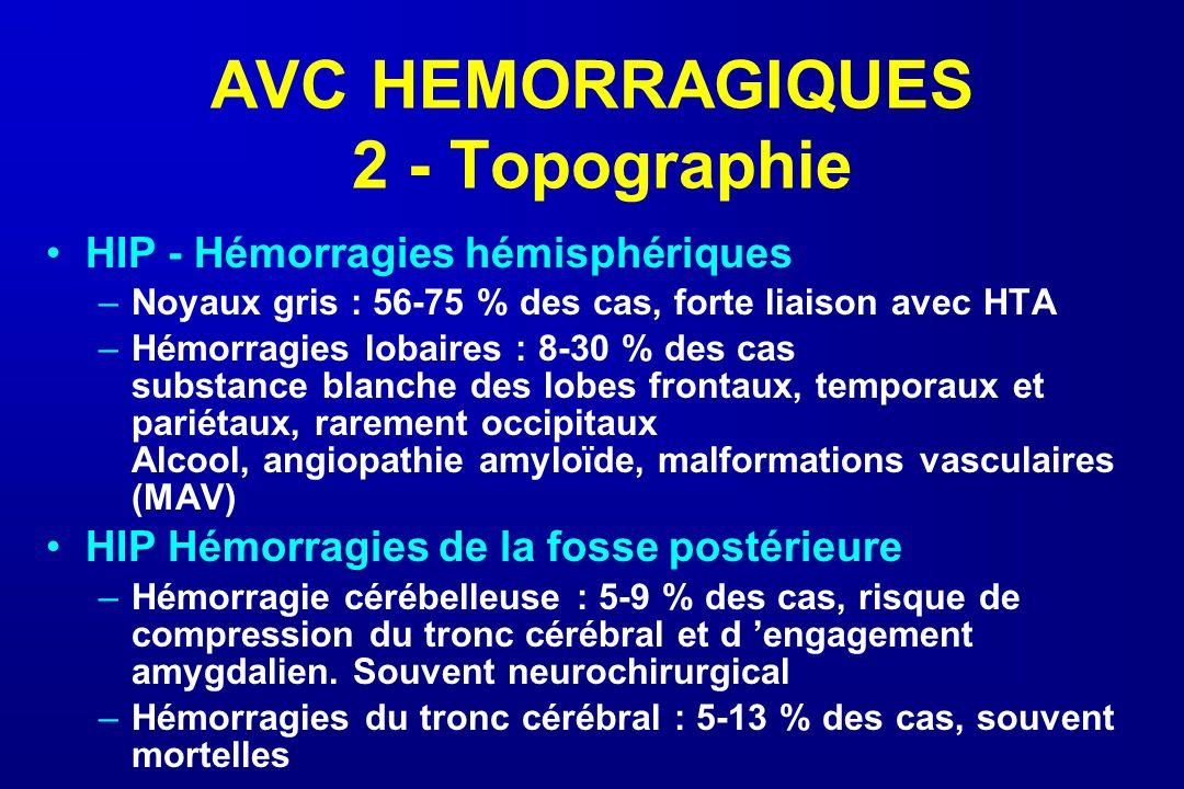 AVC HEMORRAGIQUES 2 - Topographie HIP - Hémorragies hémisphériques –Noyaux gris : 56-75 % des cas, forte liaison avec HTA –Hémorragies lobaires : 8-30