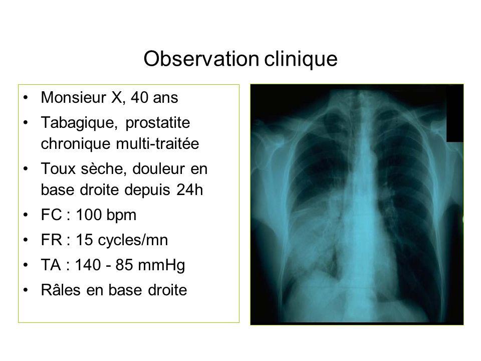 Observation clinique Monsieur X, 40 ans Tabagique, prostatite chronique multi-traitée Toux sèche, douleur en base droite depuis 24h FC : 100 bpm FR :