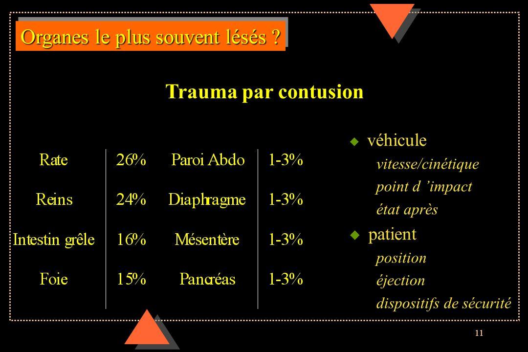 11 Organes le plus souvent lésés ? u véhicule vitesse/cinétique point d impact état après u patient position éjection dispositifs de sécurité Trauma p