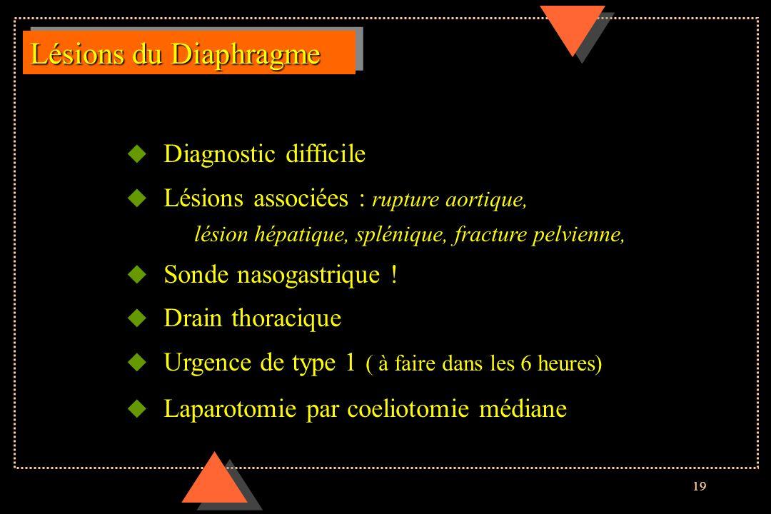 19 Lésions du Diaphragme u Diagnostic difficile u Lésions associées : rupture aortique, lésion hépatique, splénique, fracture pelvienne, u Sonde nasog