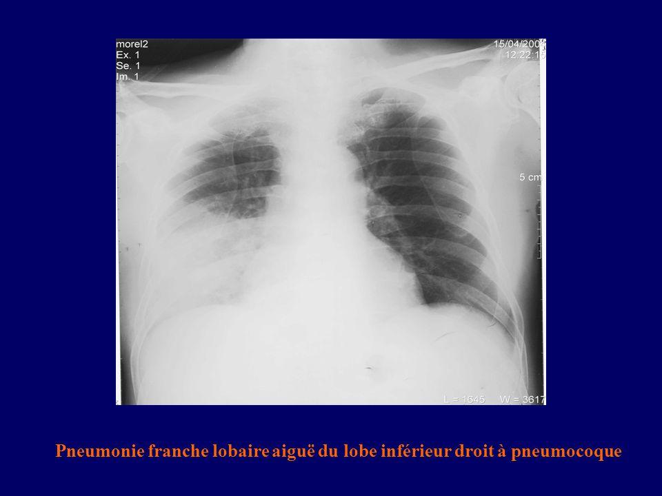 Pneumonie franche lobaire aiguë du lobe inférieur droit à pneumocoque