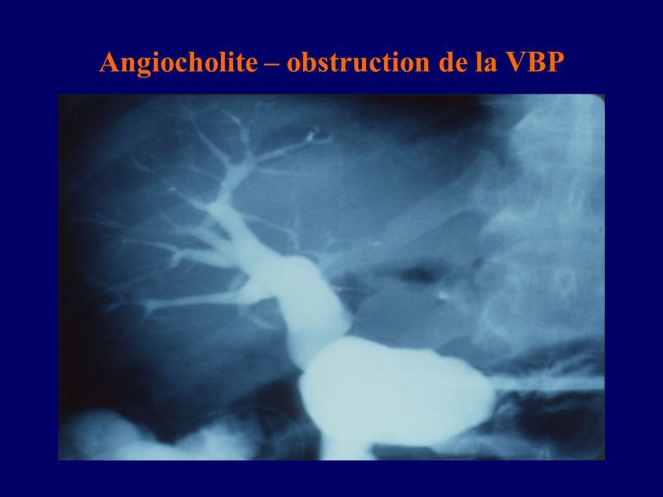 Angiocholite – obstruction de la VBP