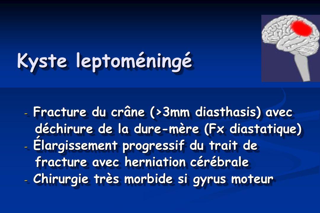 Kyste leptoméningé - Fracture du crâne (>3mm diasthasis) avec déchirure de la dure-mère (Fx diastatique) déchirure de la dure-mère (Fx diastatique) - Élargissement progressif du trait de fracture avec herniation cérébrale fracture avec herniation cérébrale - Chirurgie très morbide si gyrus moteur - Fracture du crâne (>3mm diasthasis) avec déchirure de la dure-mère (Fx diastatique) déchirure de la dure-mère (Fx diastatique) - Élargissement progressif du trait de fracture avec herniation cérébrale fracture avec herniation cérébrale - Chirurgie très morbide si gyrus moteur