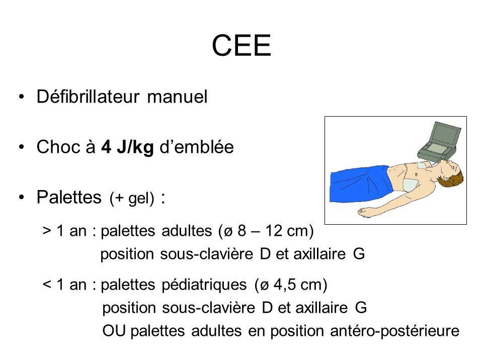 Défibrillateur manuel Choc à 4 J/kg demblée Palettes (+ gel) : > 1 an : palettes adultes (ø 8 – 12 cm) position sous-clavière D et axillaire G < 1 an
