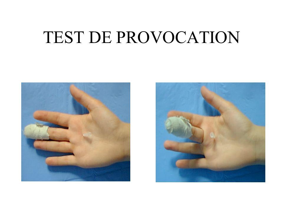 TEST DE PROVOCATION