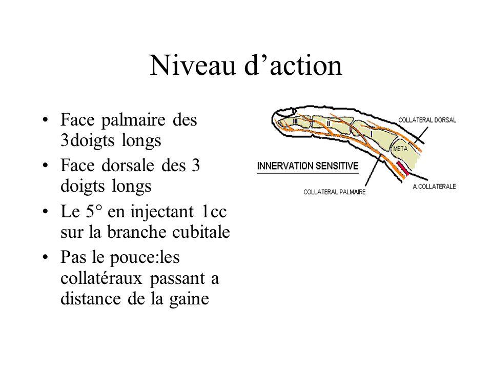 Niveau daction Face palmaire des 3doigts longs Face dorsale des 3 doigts longs Le 5° en injectant 1cc sur la branche cubitale Pas le pouce:les collaté