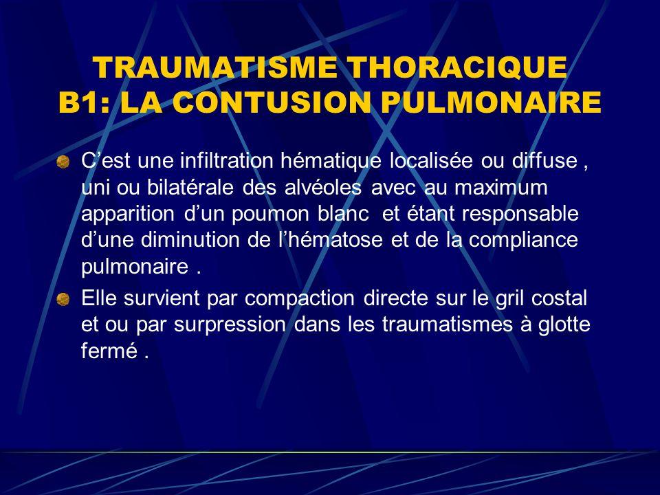 TRAUMATISME THORACIQUE B1: LA CONTUSION PULMONAIRE Cest une infiltration hématique localisée ou diffuse, uni ou bilatérale des alvéoles avec au maximum apparition dun poumon blanc et étant responsable dune diminution de lhématose et de la compliance pulmonaire.