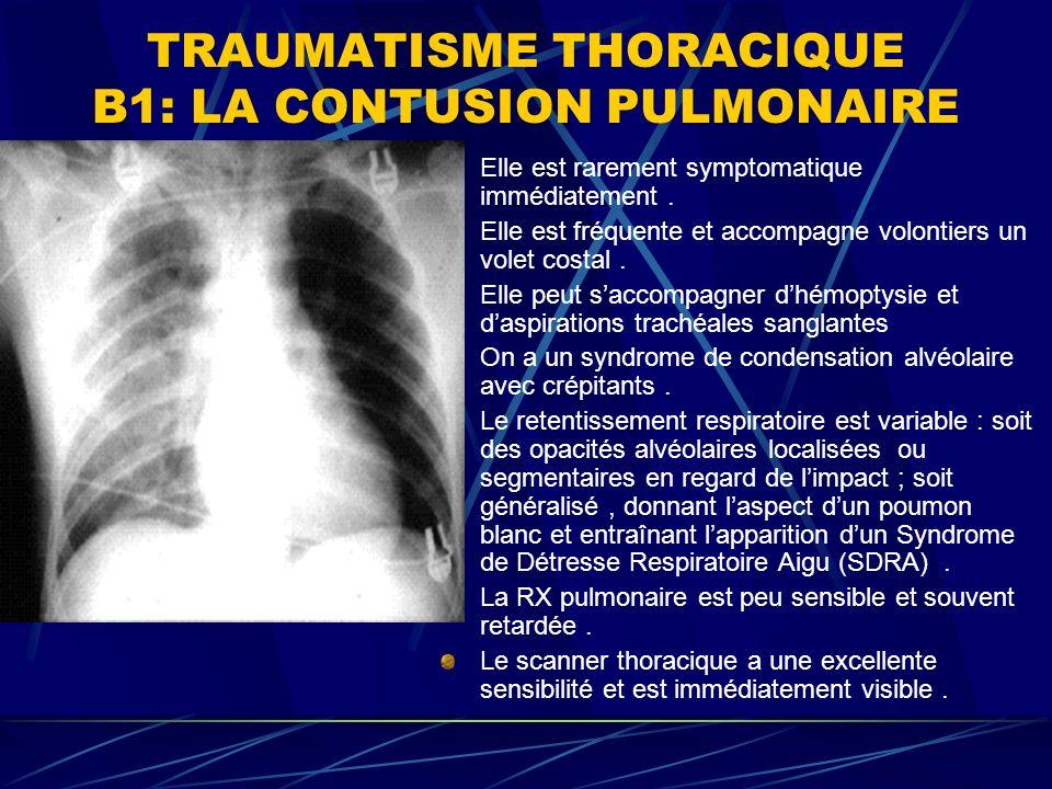 TRAUMATISME THORACIQUE B1: LA CONTUSION PULMONAIRE Elle est rarement symptomatique immédiatement.