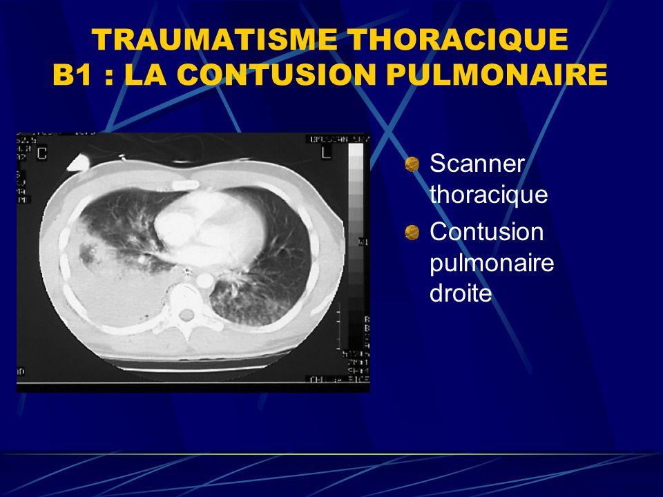 TRAUMATISME THORACIQUE B1 : LA CONTUSION PULMONAIRE Scanner thoracique Contusion pulmonaire droite