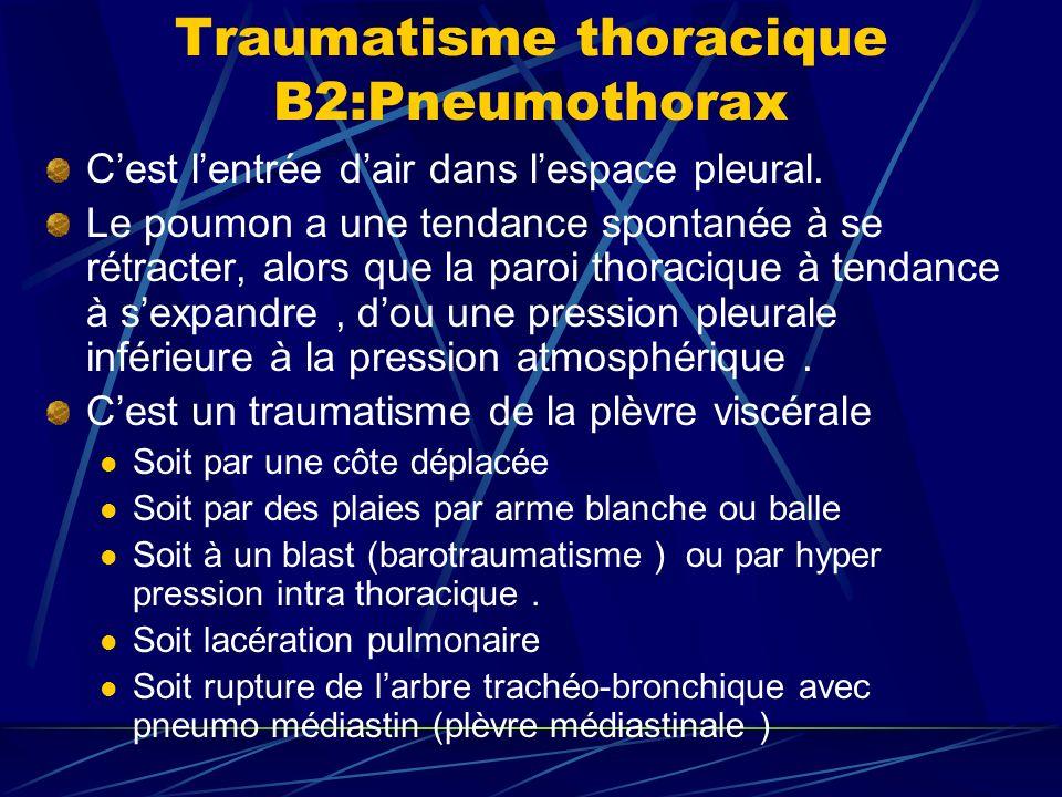 Traumatisme thoracique B2:Pneumothorax Cest lentrée dair dans lespace pleural.