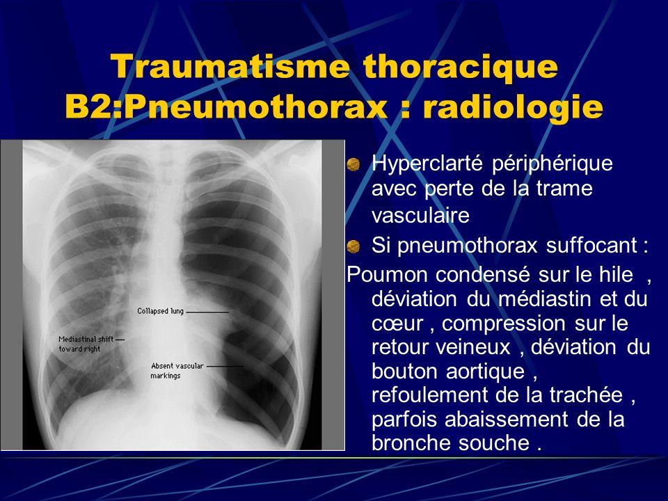 Traumatisme thoracique B2:Pneumothorax : radiologie Hyperclarté périphérique avec perte de la trame vasculaire Si pneumothorax suffocant : Poumon condensé sur le hile, déviation du médiastin et du cœur, compression sur le retour veineux, déviation du bouton aortique, refoulement de la trachée, parfois abaissement de la bronche souche.