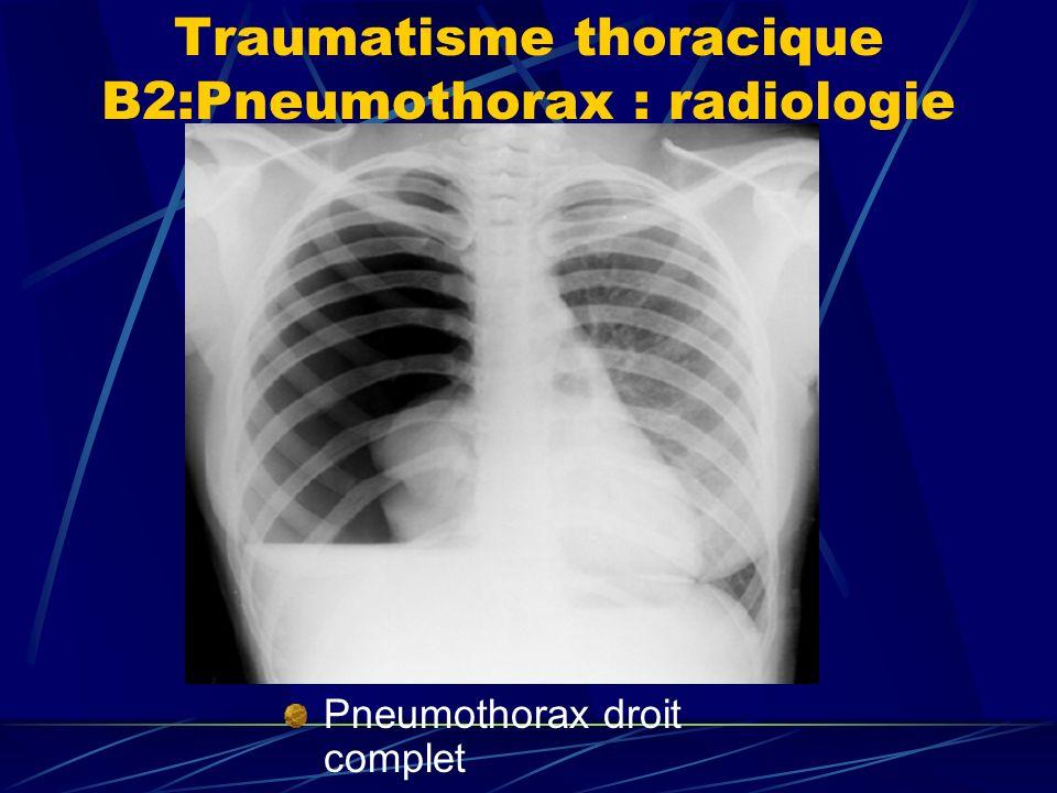 Traumatisme thoracique B2:Pneumothorax : radiologie Pneumothorax droit complet