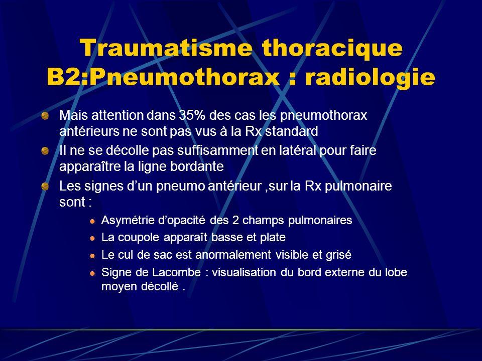 Traumatisme thoracique B2:Pneumothorax : radiologie Mais attention dans 35% des cas les pneumothorax antérieurs ne sont pas vus à la Rx standard Il ne se décolle pas suffisamment en latéral pour faire apparaître la ligne bordante Les signes dun pneumo antérieur,sur la Rx pulmonaire sont : Asymétrie dopacité des 2 champs pulmonaires La coupole apparaît basse et plate Le cul de sac est anormalement visible et grisé Signe de Lacombe : visualisation du bord externe du lobe moyen décollé.