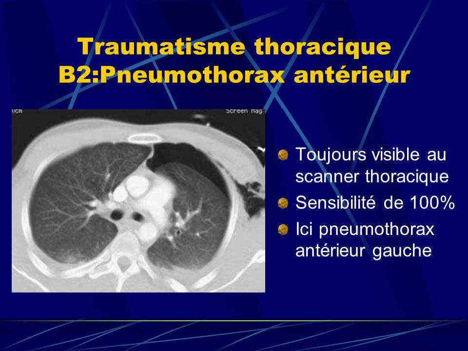 Toujours visible au scanner thoracique Sensibilité de 100% Ici pneumothorax antérieur gauche