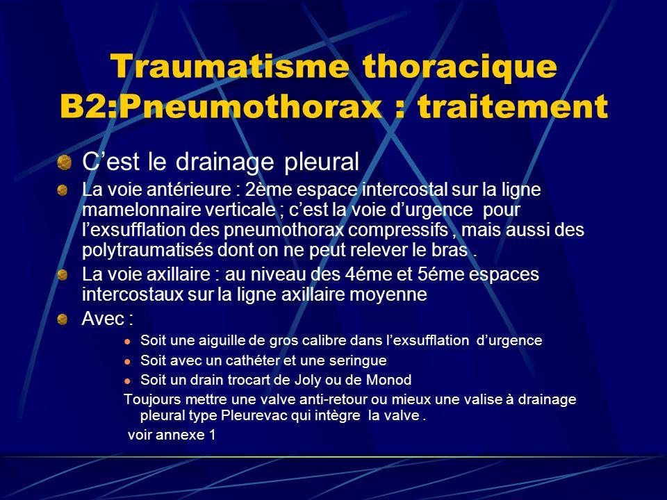 Traumatisme thoracique B2:Pneumothorax : traitement Cest le drainage pleural La voie antérieure : 2ème espace intercostal sur la ligne mamelonnaire verticale ; cest la voie durgence pour lexsufflation des pneumothorax compressifs, mais aussi des polytraumatisés dont on ne peut relever le bras.