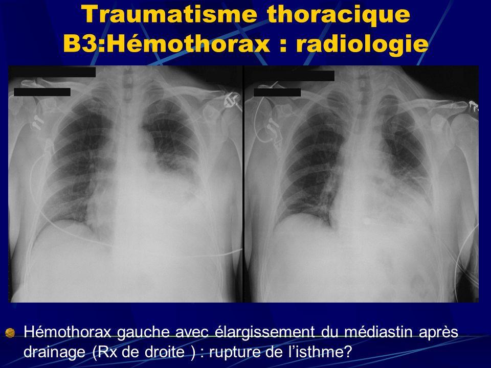 Traumatisme thoracique B3:Hémothorax : radiologie Hémothorax gauche avec élargissement du médiastin après drainage (Rx de droite ) : rupture de listhme?