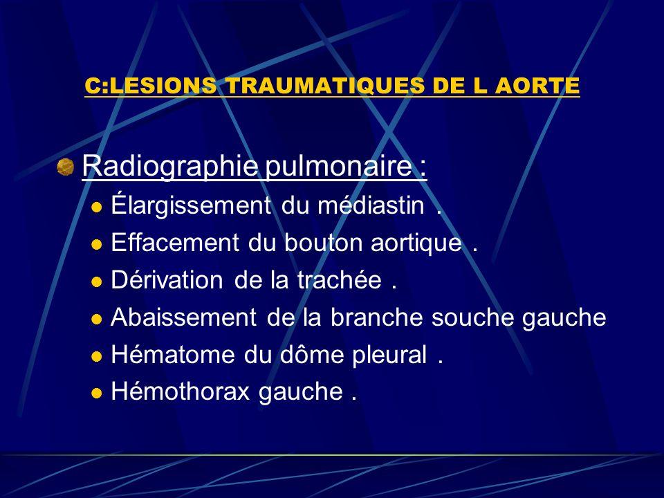 C:LESIONS TRAUMATIQUES DE L AORTE Radiographie pulmonaire : Élargissement du médiastin.