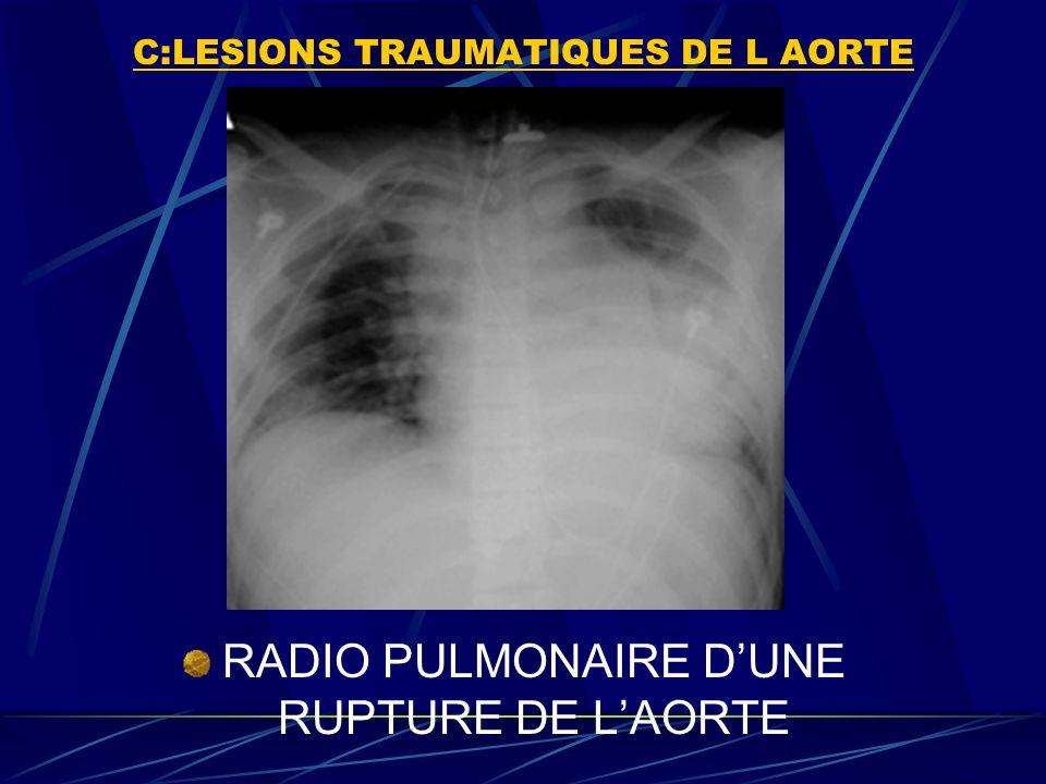 C:LESIONS TRAUMATIQUES DE L AORTE RADIO PULMONAIRE DUNE RUPTURE DE LAORTE