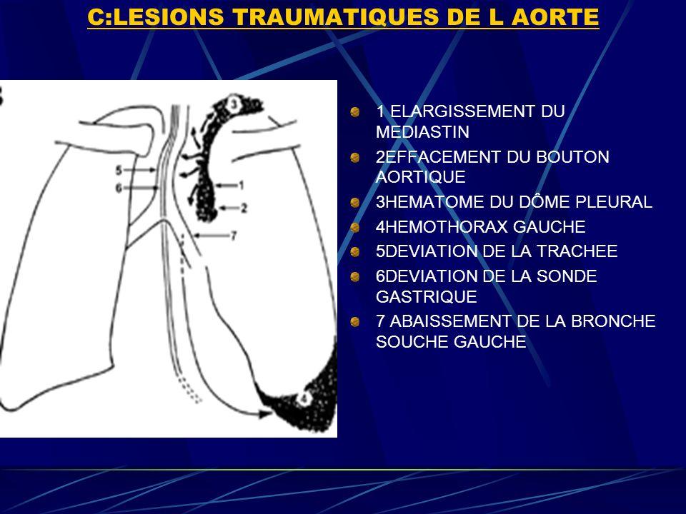 C:LESIONS TRAUMATIQUES DE L AORTE 1 ELARGISSEMENT DU MEDIASTIN 2EFFACEMENT DU BOUTON AORTIQUE 3HEMATOME DU DÔME PLEURAL 4HEMOTHORAX GAUCHE 5DEVIATION DE LA TRACHEE 6DEVIATION DE LA SONDE GASTRIQUE 7 ABAISSEMENT DE LA BRONCHE SOUCHE GAUCHE