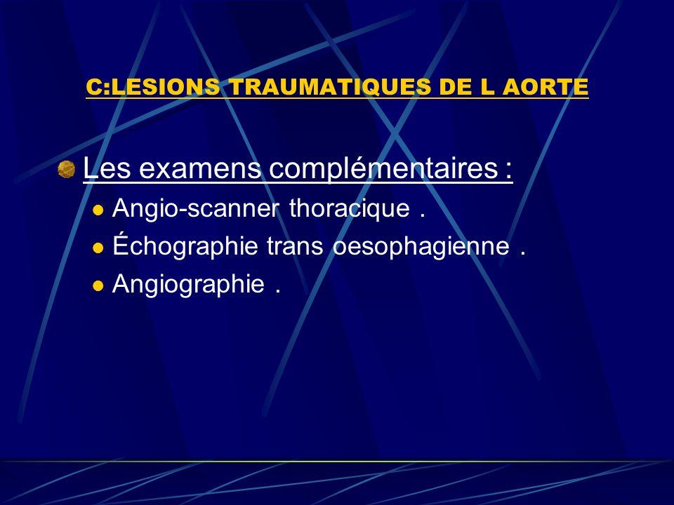 C:LESIONS TRAUMATIQUES DE L AORTE Les examens complémentaires : Angio-scanner thoracique.