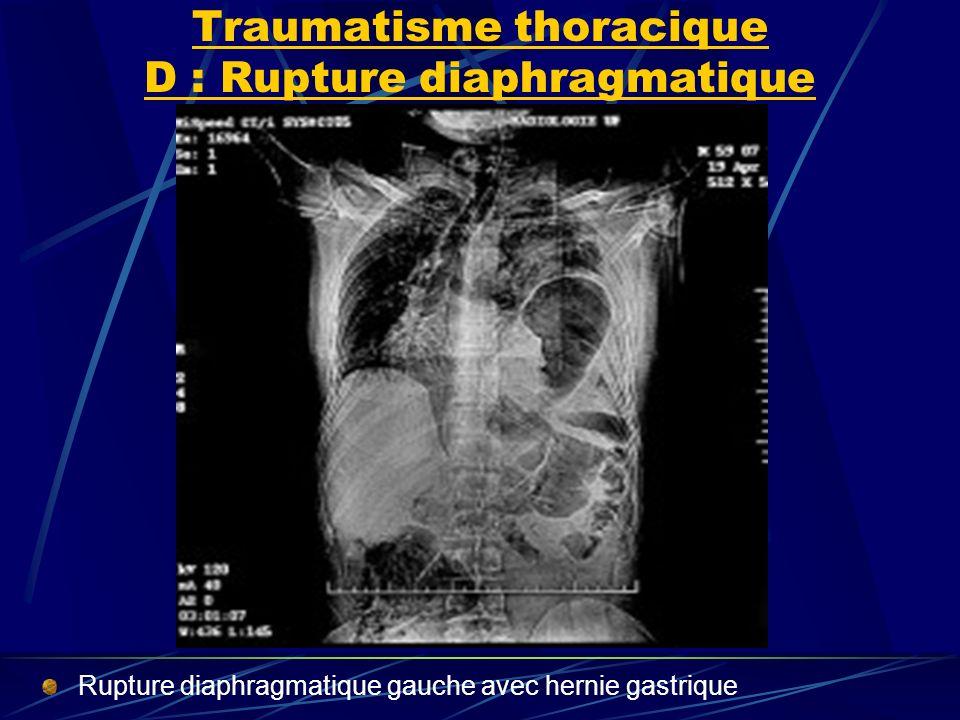 Traumatisme thoracique D : Rupture diaphragmatique Rupture diaphragmatique gauche avec hernie gastrique