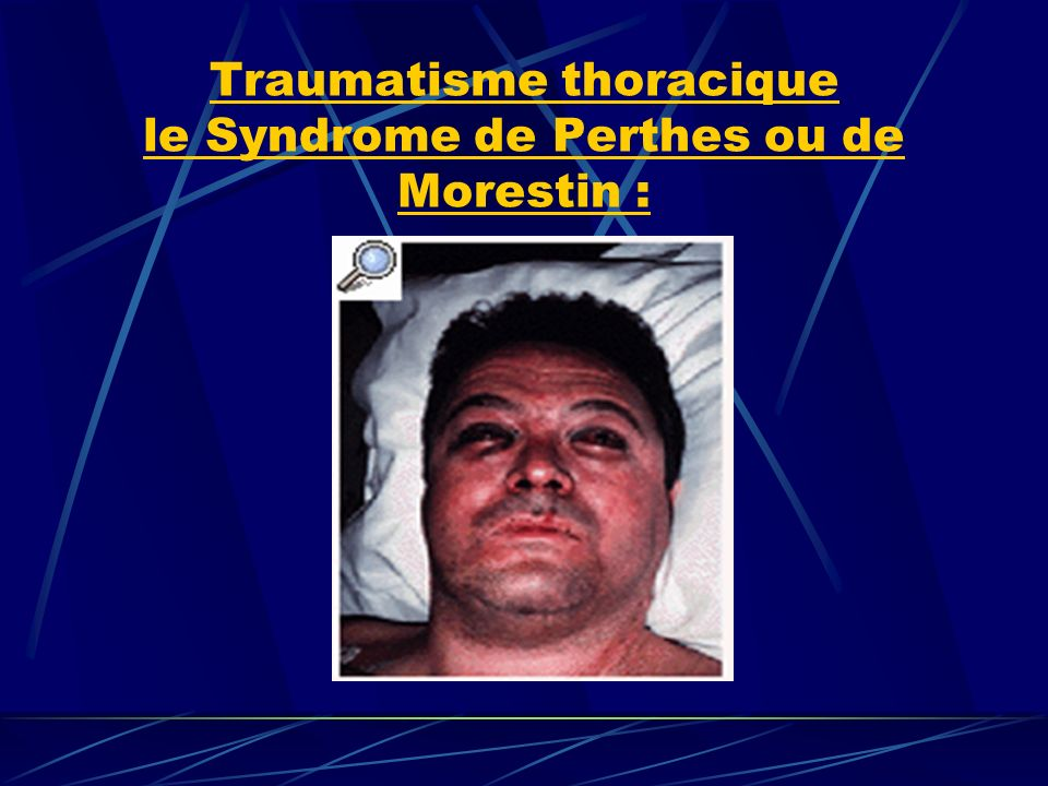 Traumatisme thoracique le Syndrome de Perthes ou de Morestin :
