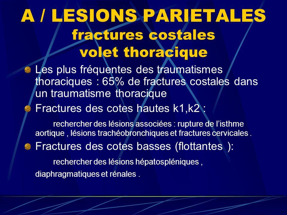 A / LESIONS PARIETALES fractures costales volet thoracique Les plus fréquentes des traumatismes thoraciques : 65% de fractures costales dans un traumatisme thoracique Fractures des cotes hautes k1,k2 : rechercher des lésions associées : rupture de listhme aortique, lésions trachéobronchiques et fractures cervicales.