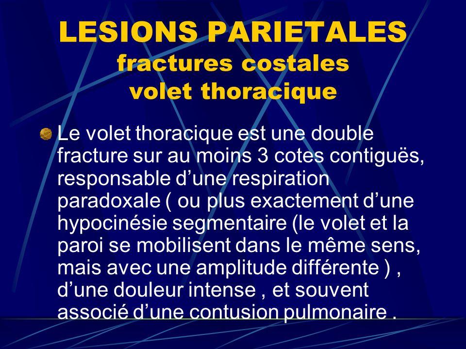 LESIONS PARIETALES fractures costales volet thoracique Le volet thoracique est une double fracture sur au moins 3 cotes contiguës, responsable dune respiration paradoxale ( ou plus exactement dune hypocinésie segmentaire (le volet et la paroi se mobilisent dans le même sens, mais avec une amplitude différente ), dune douleur intense, et souvent associé dune contusion pulmonaire.