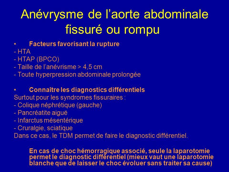 Anévrysme de laorte abdominale fissuré ou rompu Signes cliniques évoquant un AAA fissuré ou rompu Douleur abdominale transfixiante intense ou épigastr