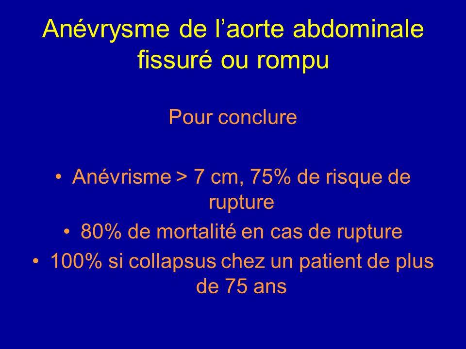 Anévrysme de laorte abdominale fissuré ou rompu Connaître les examens complémentaires permettant le diagnostic ASP : calcifications dessinant les cont