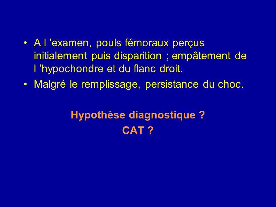 Ischémie intestinale aiguë Terrain Age Cardiopathie emboligène : cardiopathie valvulaire, AC/FA Maladie athéromateuse Embolies systémiques périphériques Phlébite périphérique Anomalies de coagulation et maladies hématologiques (Vaquez, drépanocytose…) Facteurs favorisant les thromboses Chirugie vasculaire digestive Carcinose évolutive