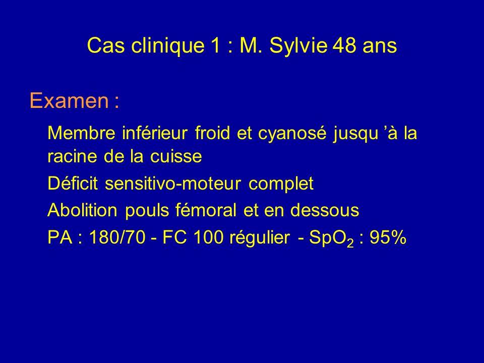 Cas clinique 7 : M. Sylvie 48 ans HDM : Douleur aiguë membre inf. gauche (02 h) Admission à 16 h (clinique) - 18 h aux urgences de Pellegrin ATCD : Mi