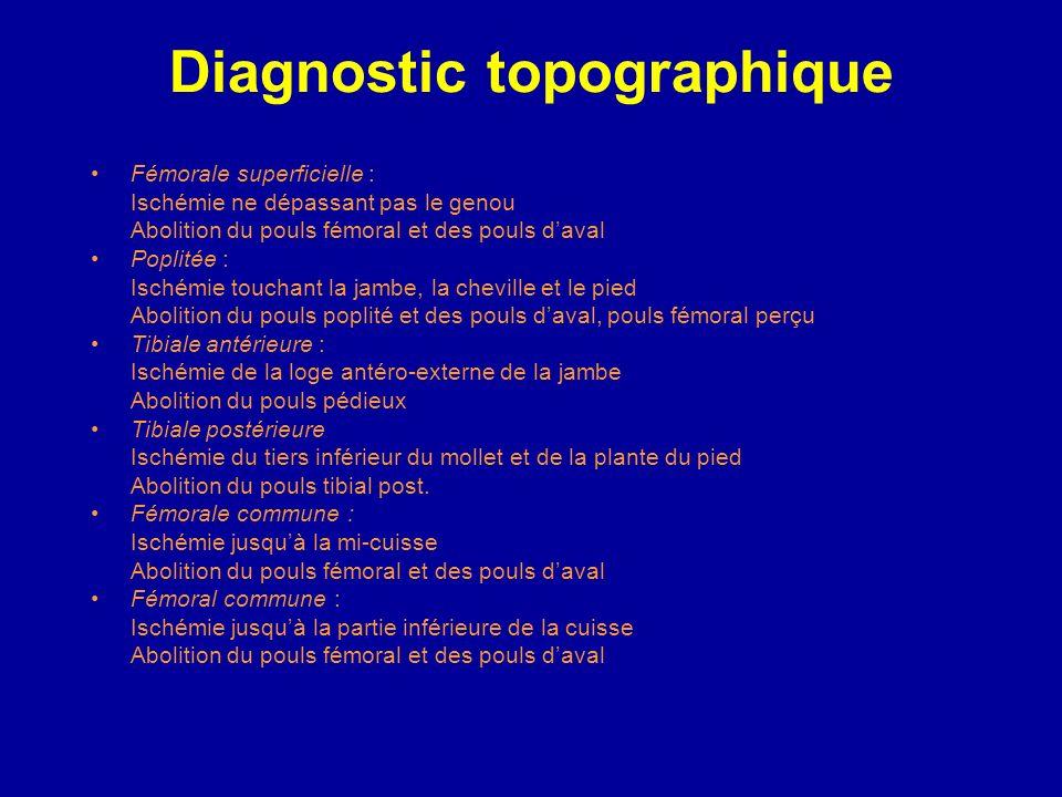 Diagnostic topographique Surtout clinique +++ Selon le siège de la douleur initiale, le niveau dabolition des pouls, la limite supérieure des signes c