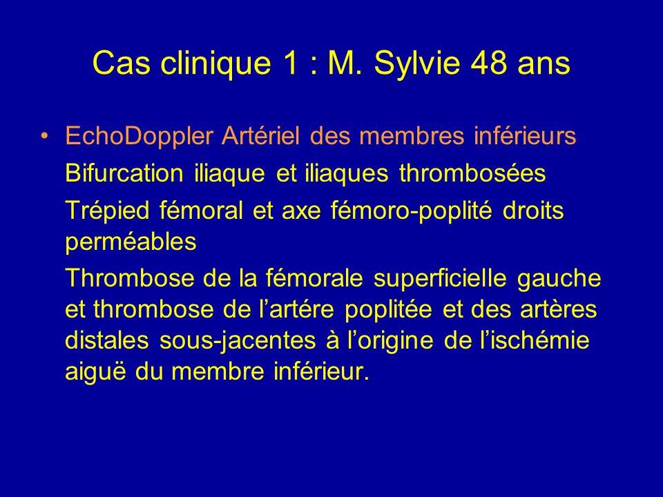 Cas clinique 1 : M. Sylvie 48 ans ECG Sinusal, régulier, FC : 110 min Hémibloc antérieur G