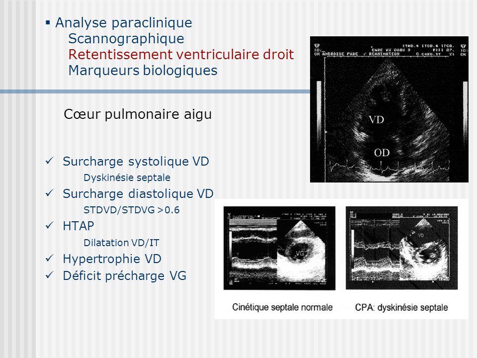 Analyse paraclinique Scannographique Retentissement ventriculaire droit Marqueurs biologiques Surcharge systolique VD Dyskinésie septale Surcharge dia
