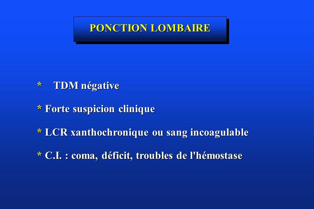 PONCTION LOMBAIRE * TDM négative * Forte suspicion clinique * LCR xanthochronique ou sang incoagulable * C.I. : coma, déficit, troubles de l'hémostase