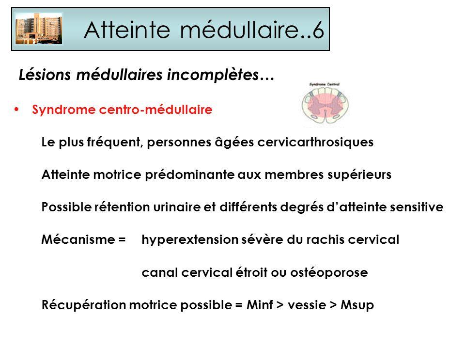 Atteinte médullaire..6 Syndrome centro-médullaire Le plus fréquent, personnes âgées cervicarthrosiques Atteinte motrice prédominante aux membres supér