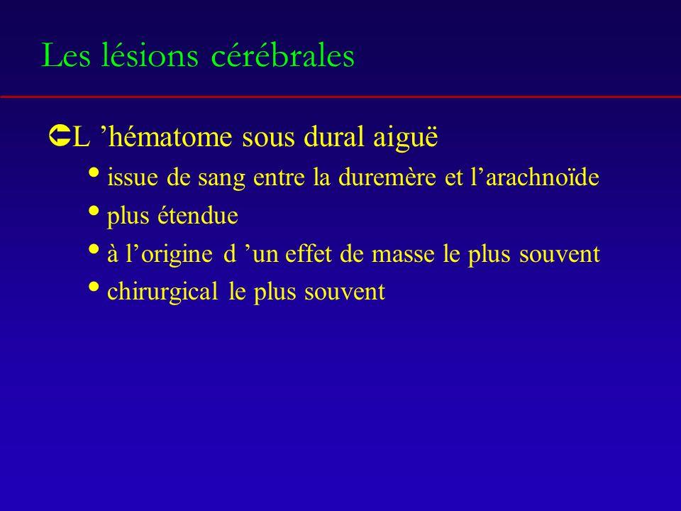 Les lésions cérébrales ÛL hématome sous dural aiguë issue de sang entre la duremère et larachnoïde plus étendue à lorigine d un effet de masse le plus souvent chirurgical le plus souvent