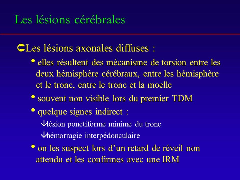 Les lésions cérébrales ÛLes lésions axonales diffuses : elles résultent des mécanisme de torsion entre les deux hémisphère cérébraux, entre les hémisphère et le tronc, entre le tronc et la moelle souvent non visible lors du premier TDM quelque signes indirect : âlésion ponctiforme minime du tronc âhémorragie interpédonculaire on les suspect lors dun retard de réveil non attendu et les confirmes avec une IRM