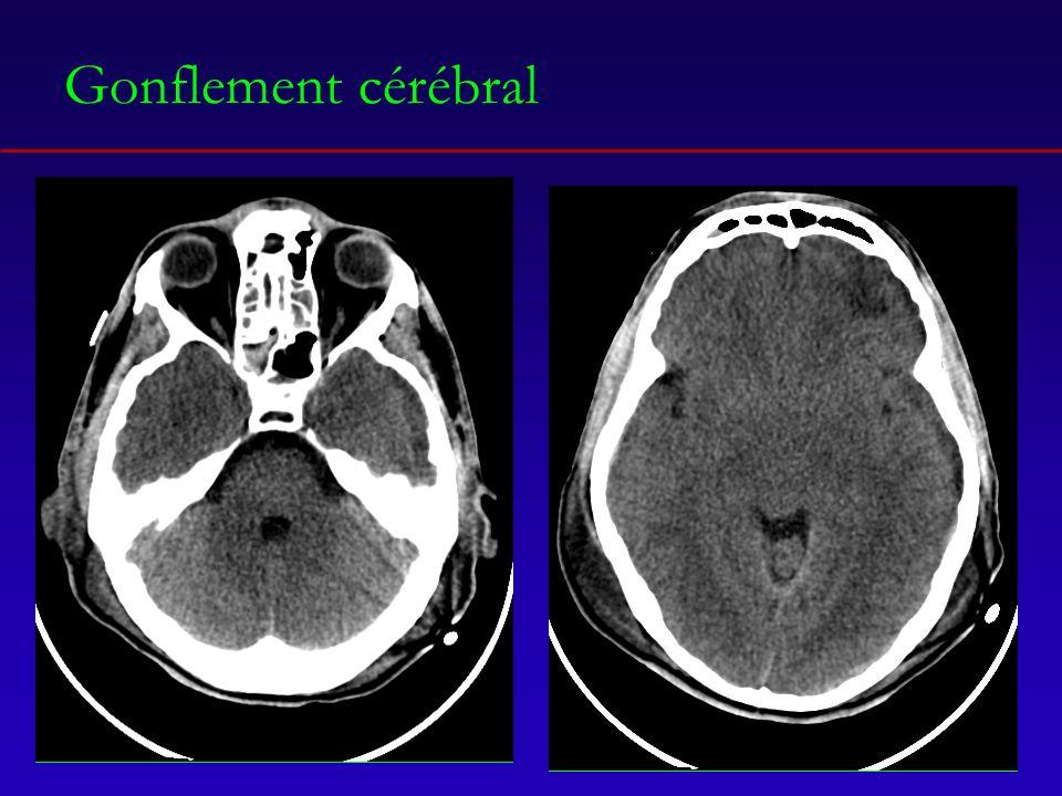 Gonflement cérébral