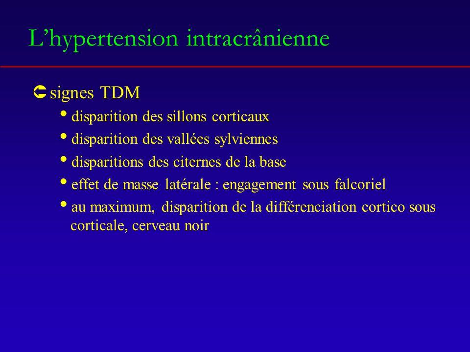 Lhypertension intracrânienne Ûsignes TDM disparition des sillons corticaux disparition des vallées sylviennes disparitions des citernes de la base effet de masse latérale : engagement sous falcoriel au maximum, disparition de la différenciation cortico sous corticale, cerveau noir