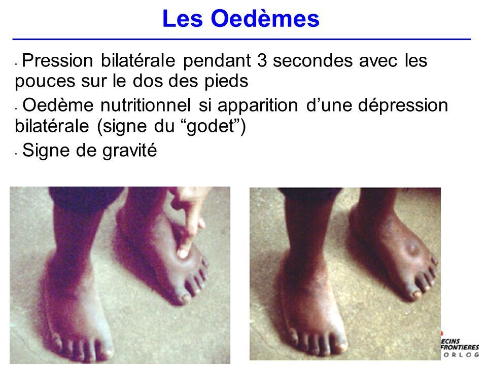Pression bilatérale pendant 3 secondes avec les pouces sur le dos des pieds Oedème nutritionnel si apparition dune dépression bilatérale (signe du godet) Signe de gravité Les Oedèmes