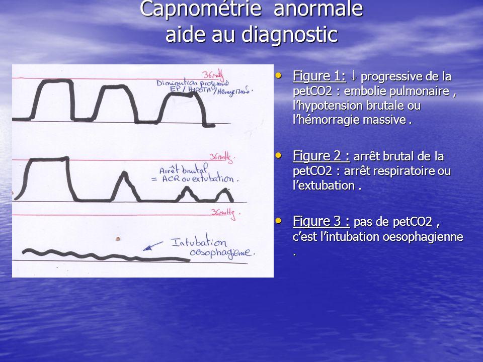 Capnométrie anormale aide au diagnostic Figure 1: progressive de la petCO2 : embolie pulmonaire, lhypotension brutale ou lhémorragie massive. Figure 1