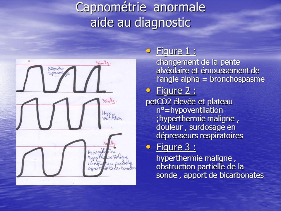 Capnométrie anormale aide au diagnostic Figure 1 : Figure 1 : changement de la pente alvéolaire et émoussement de langle alpha = bronchospasme Figure