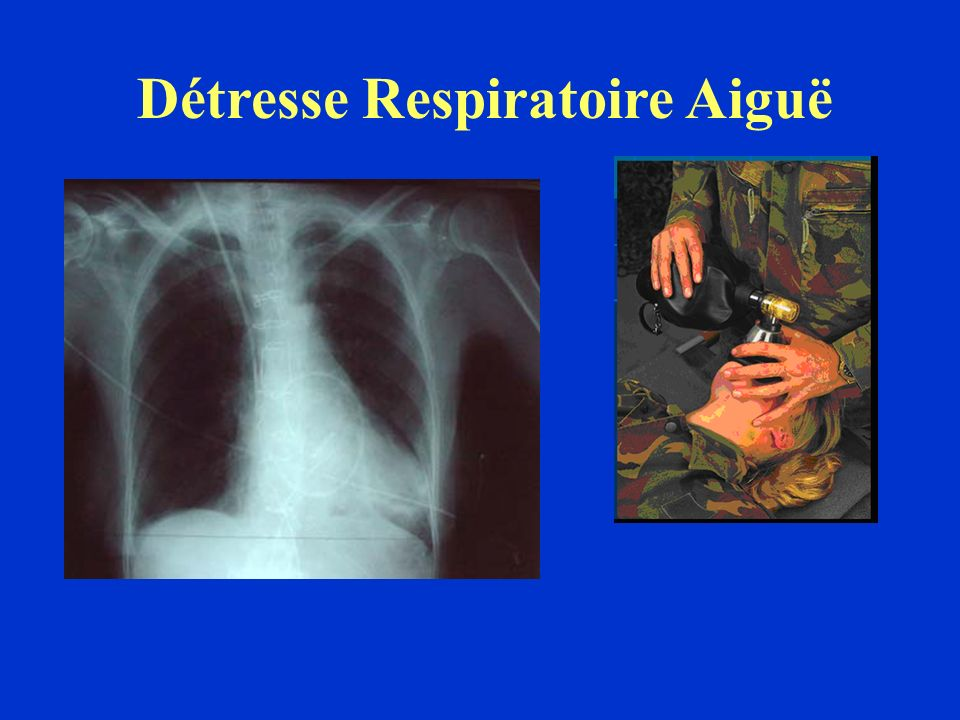 Détresses respiratoires et blessés de guerre