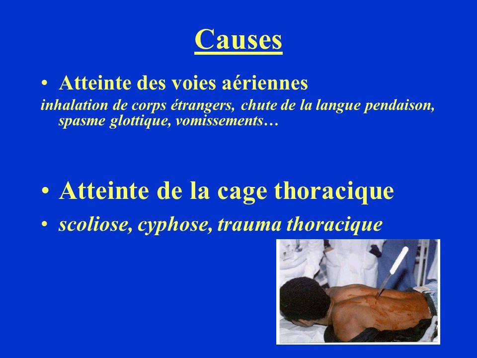 Atteinte des muscles respiratoires tétanos, botulisme, curarisation, myasthénie Atteinte des poumons et de la plèvre pneumothorax, OAP, noyade, BPCO, asthme..